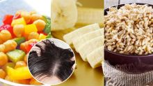 7 Super Foods That Are Effective In Treating Dandruff Naturally