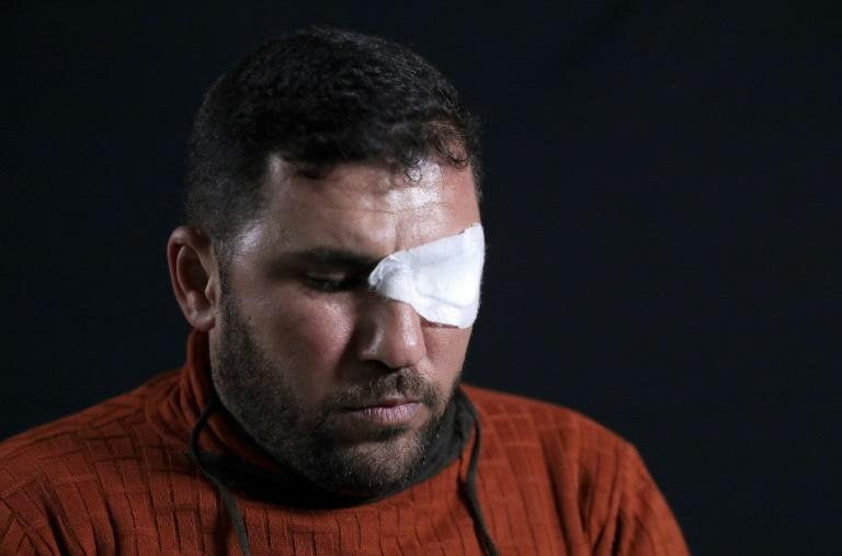 Sami Marsan, who lost his left eye, poses for a photo in Gaza. All those AFP met with were left scarred and their lives wrecked (AFP Photo/Emmanuel DUNAND)
