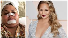 This is how Chrissy Teigen gets rid of blackheads