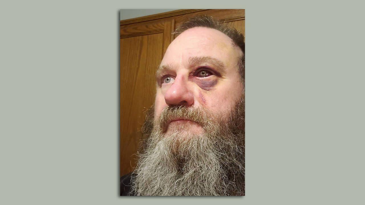 Prison sentence for Iowa face mask fight raises questions about mandatory minimums