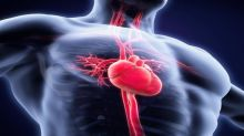 Medtronic's (MDT) REVERSE Trial Indicates CRT's Benefits for HF