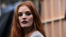 Questa top model inglese ha una nuova importante lezione a tema acne e skin positivity da insegnarci