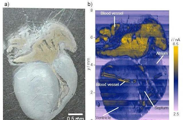 Researchers use electric currents to detect cancer in human tissue