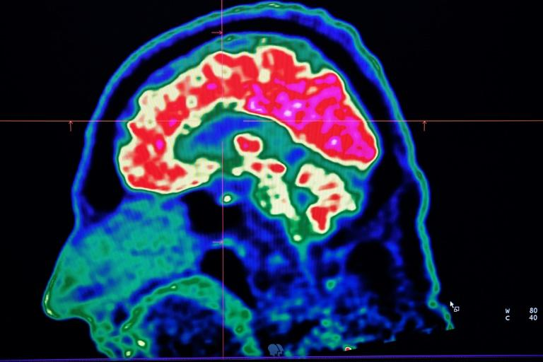 Brain problems linked to even mild virus infections: study