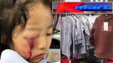 Girl's horrific injury at Kmart sparks major change