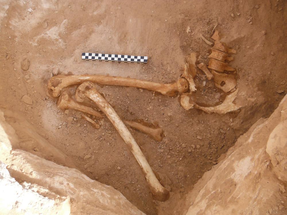 Woman's fetus bones