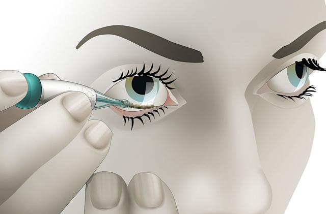 Eyelid glucose sensor might pick up where Verily left off