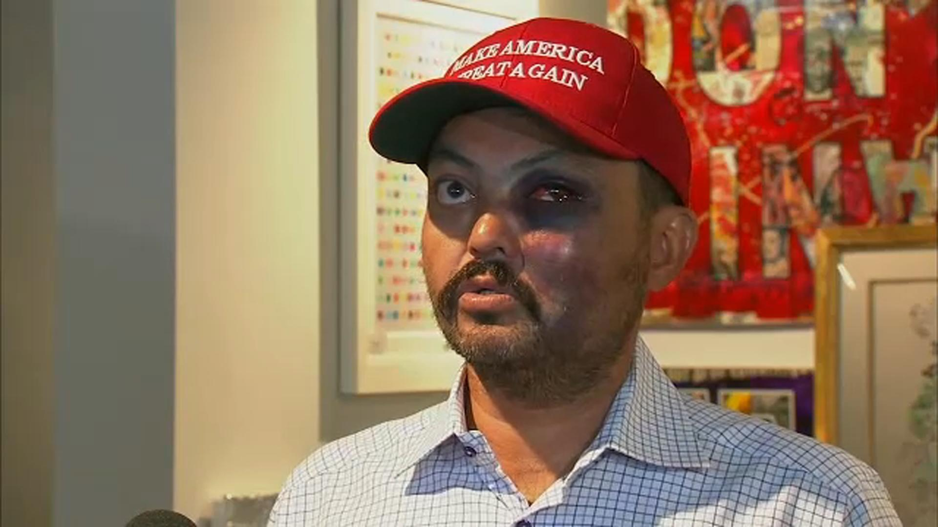 0486a4134c166 Man says he was attacked for wearing 'Make America Great Again' hat