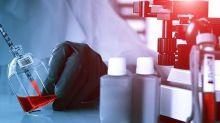 Miragen Therapeutics Inc (NASDAQ:MGEN): Will The Growth Last?