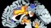 Brain scan may help diagnose depression