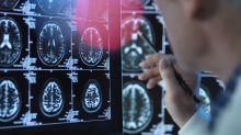Alzheimer : la maladie favorisée par l'aluminium ?