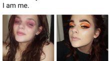 Jovem vítima da dermatite descobre a aceitação através da maquiagem