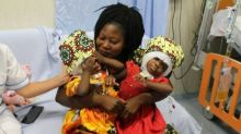 Two conjoined twins separated successfully in Italy