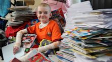 Boy with rare skin-peeling condition is sent 18,000 birthday cards from well-wishers