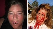 Woman gets Halloween 'devil teeth' stuck in her mouth
