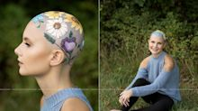 Teen uses her senior portraits to beautifully embrace her alopecia