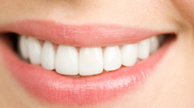 Stained teeth? This whitening kit has 2,900 reviews and is on sale for only $12