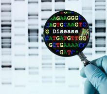 CDC's PulseNet tracks sources of bad lettuce, eggs, other foodborne illnesses