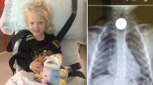 'She started choking': Mum's horror as dollar coin stuck in girl's throat