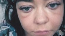 'Modern Family' star Sarah Hyland hospitalized, reveals photo of swollen face