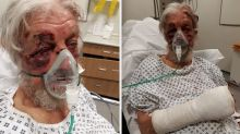 Shocking pictures of pensioner seriously injured in 'nonsensical' attack by dangerous driver