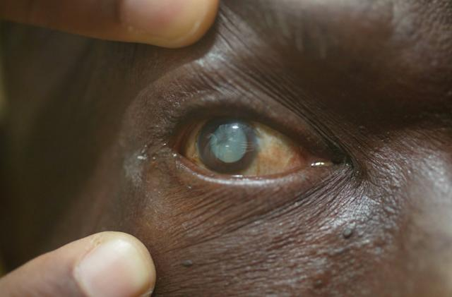 New research hints at stem cell treatments for cataracts