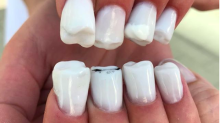 Horrific 'teeth nails' have been added to the list of outrageous nail trends
