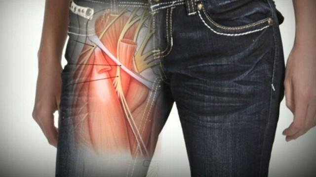 Tight Skinny Jeans Might Cause Nerve Damage