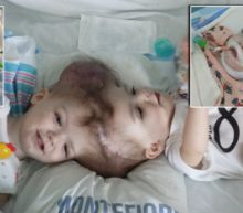 1-Year-Old Twin Boys Joined at the Head Separated After 22-Hour Surgery