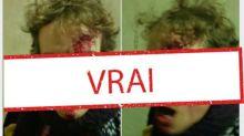 Oui, un chercheur a bien été blessé à la tête par un policier au Trocadéro