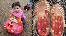 'From blisters to horrific skin peeling': Toddler develops severe burns from jelly sandals
