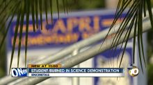 13-year-old boy's face burned during school science experiment: 'It was just hell'
