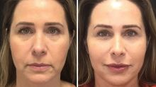 Andréa Sorvetão aposta em harmonização facial: 'Idade chega para todos'
