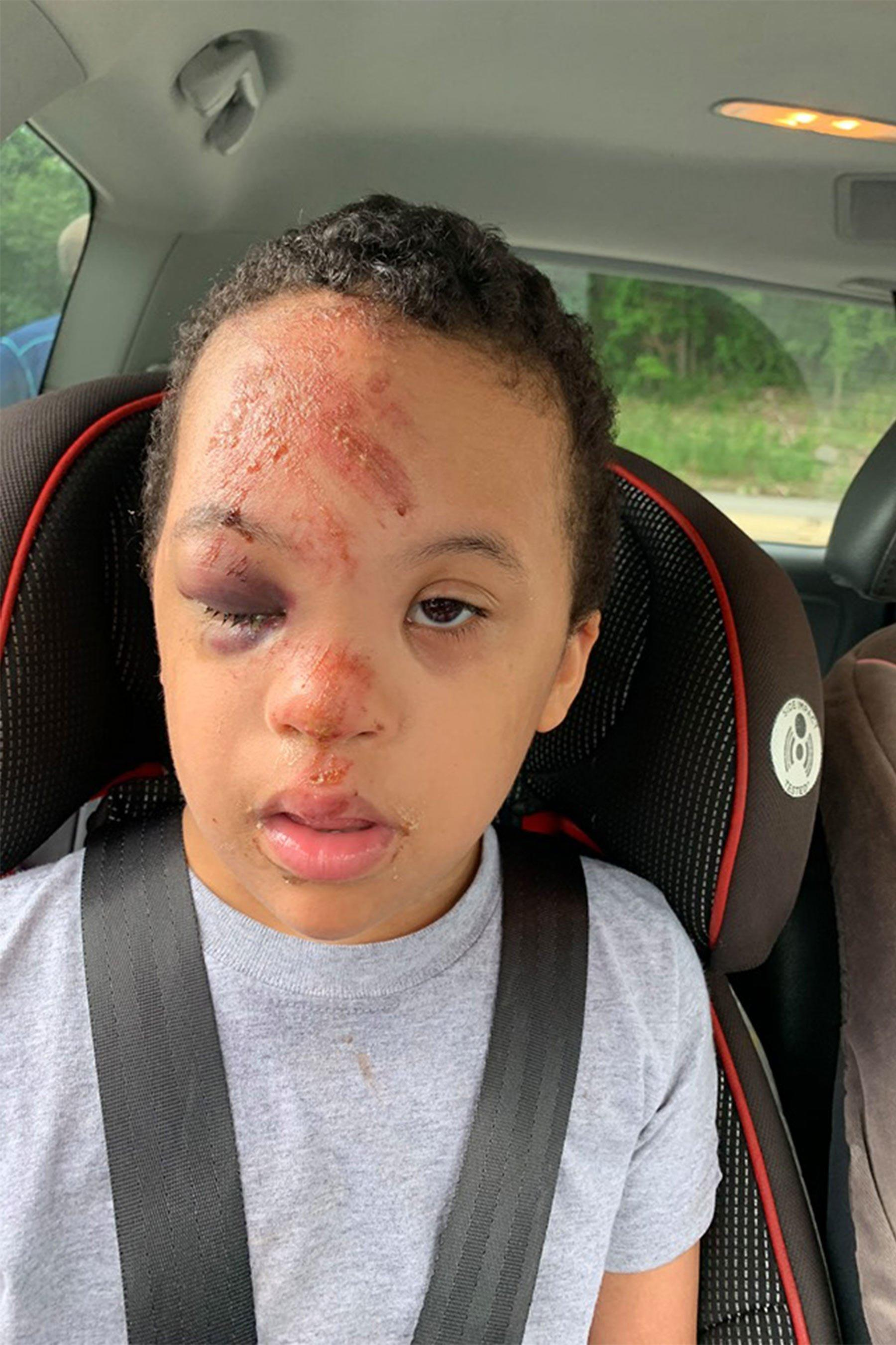 Pennsylvania Mom Outraged After Son 7 With Down Syndrome Suffers Bloodied Face On School Bus