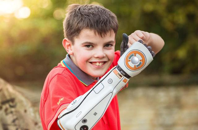 Open Bionics' 3D-printed prosthetic arm is now available in the US