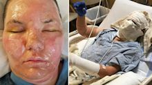 'Imagine your skin falling off': Couple left with severe burns after cooking spray explodes