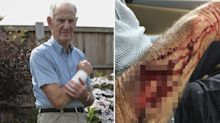 Pensioner left bleeding in ditch after dog mauls 'chunk of flesh' from his arm