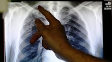 Tuberculosis Became The Fifth Health Issue To Get A High-Level UN Meeting. It Didn't Go Very Well.