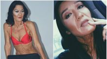 26-year-old with 'Wrinkles' Challenges Beauty Stereotypes by Becoming a Model
