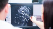 What Your 'Brain Age' Means For Living Longer