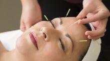 O que é acupuntura e quais são seus benefícios