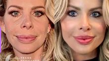 Cirurgião revela o antes e depois de preenchimento labial de Karina Bacchi