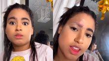 MC Loma erra ao copiar tutorial de beleza e raspa sobrancelha inteira