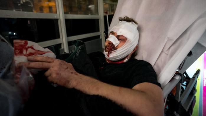 """Manifestation contre la loi """"sécurité globale"""" : une enquête ouverte après les blessures subies par un photographe syrien samedi"""