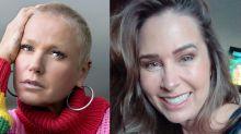 Xuxa Meneghel critica harmonização facial de Sorvetão: 'Está sem expressão'
