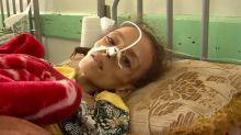 ICRC Estimates 2.2 Million Acutely Malnourished Yemeni Children, Hails Peace Talks as Important Step