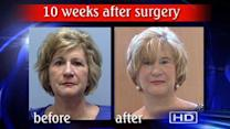 New type of facelift garners attention