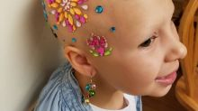 Little Girl Who Went Bald From Alopecia Celebrates 'Crazy Hair Day'