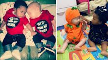 Mother of black and white twins says people don't believe they are both hers