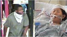 Family of botched robbery victim says she 'won't make it', decides to donate her organs